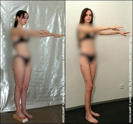 girl-before1